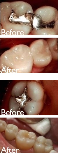 Tooth Colored Bonded Fillings in San Marino