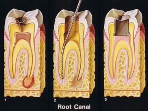 Root Canals in San Marino